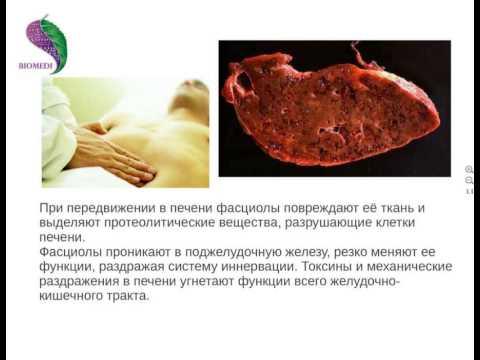Как избавиться от паразитов у человека