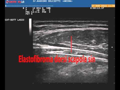 Massaggio di osteochondrosis di reparto di petto di sintomi di spina dorsale