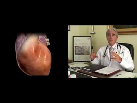 Hipertenzija, treći stupanj simptoma