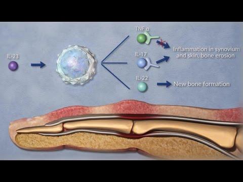 Atopitscheski die Hautentzündung die Inkubationsperiode