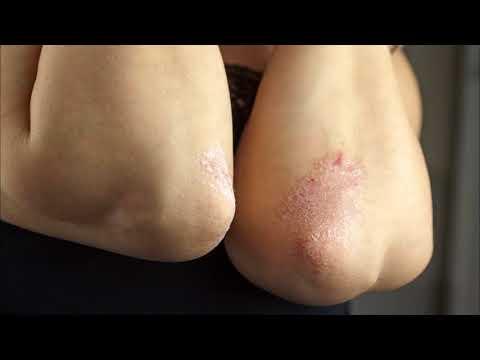 Крем при пигментации кожи лица