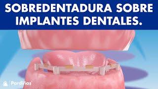 Sobredentadura sobre implantes ©