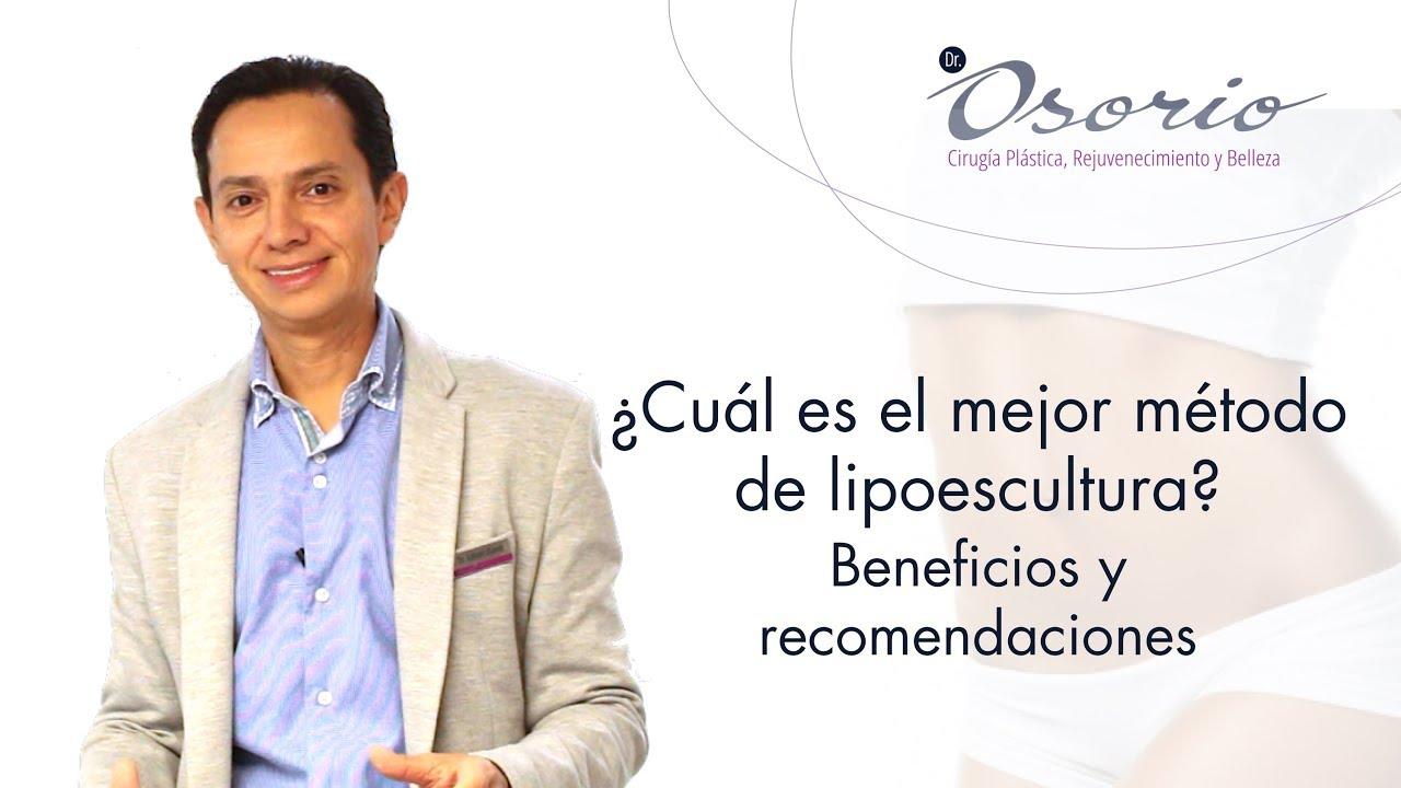 LIPOESCULTURA Capítulo 3. ¿Cuál es el mejor método de lipoescultura? Beneficios y recomendaciones.