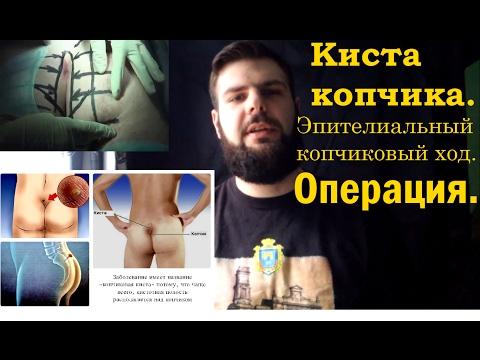 Для чего делается пункция предстательной железы