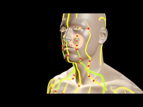 Wie man die Schmerzen der zervikalen degenerativen Bandscheibenerkrankungen entfernen