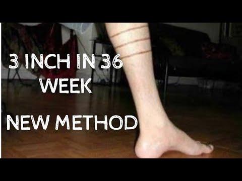 Trichinózis tünetei emberben