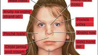 Fetálny alkoholový syndróm: správa v slovenskom posunkovom jazyku