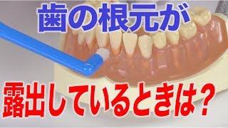 歯根露出の人のブラッシング術