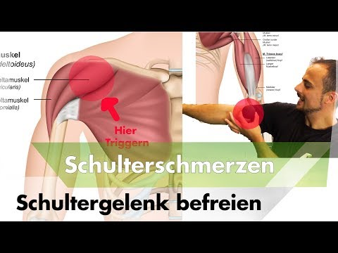 Diagnose Verformungs Arthrose der Hüftgelenke