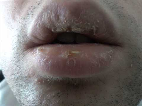 Rimedi di gente di unguento da eczema