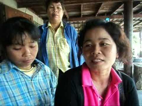 Tar ไม้เรียวสำหรับโรคสะเก็ดเงิน palmoplantar โรคสะเก็ดเงิน
