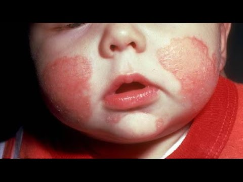 Le régime de la mère à atopitcheskom la dermatite chez de poitrine