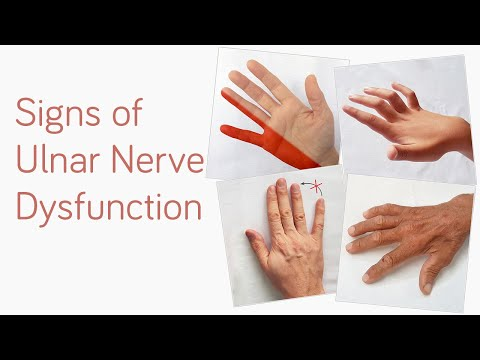 Metode de cercetare pentru pacienții cu boli articulare