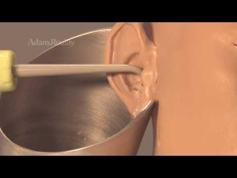I parassiti che vivono alla persona in muscoli