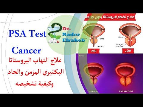 A férfiak krónikus prostatitisének kezelése