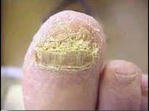 Als den Nagel auf dem Bein der zu behandeln ist von der Haut weggegangen