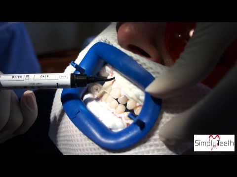 Simply Teeth - Carrying out a Philips ZOOM!® whitening system