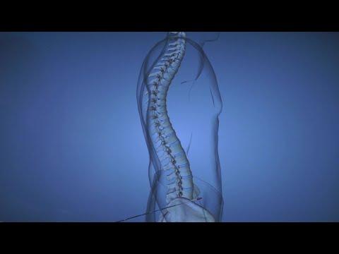 A jobb boka ízületének ligamentumainak károsodása