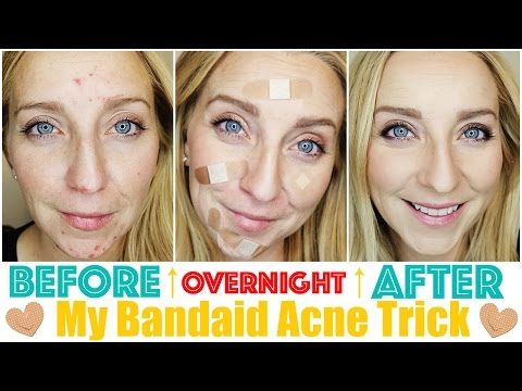 Video How to Get Rid of Acne Fast & OVERNIGHT with My Bandaid Trick!