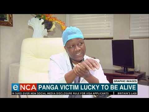 Panga victim lucky to be alive