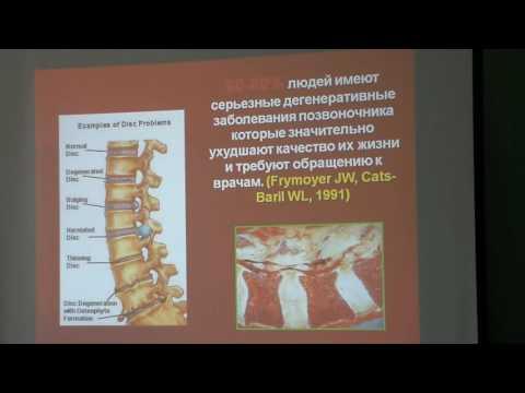 Дегенеративные заболевания позвоночника, ч.1