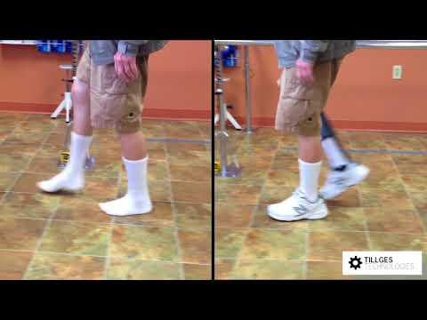 Propulsion TMA Partial Foot Prosthesis