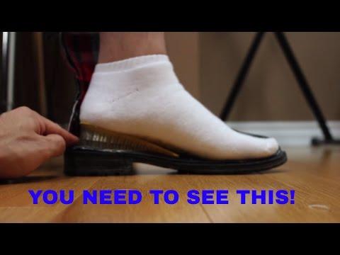 การเปลี่ยนรูป valgus ของนิ้วเท้าแรก