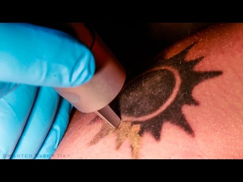 Science Lesson: How Does Laser Tattoo Removal Work?