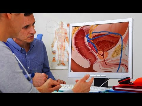 Intraductal papilloma treatment guidelines