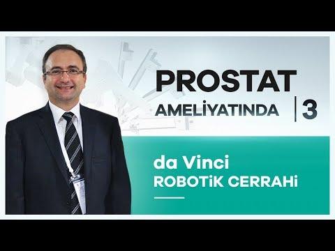 """da Vinci Robotik Cerrahi"""" sistemiyle Prostat Kanseri Ameliyatı -"""