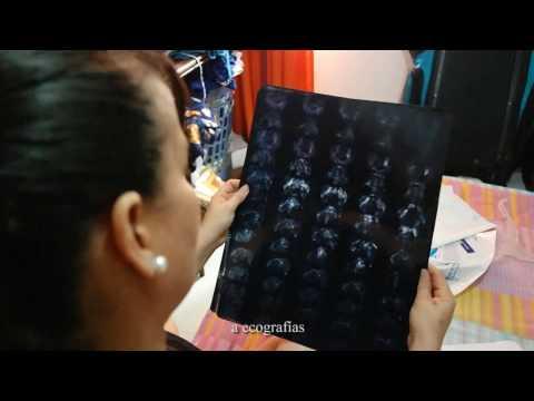 La psoriasis el ungüento del hongo de las uñas