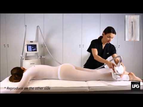 La thrombose aiguë du noeud extérieur hémorroïdaire