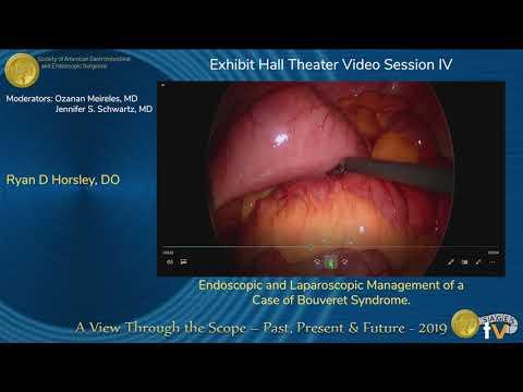 Endoskopowe i laparoskopowe postępowanie w zespole Bouvereta