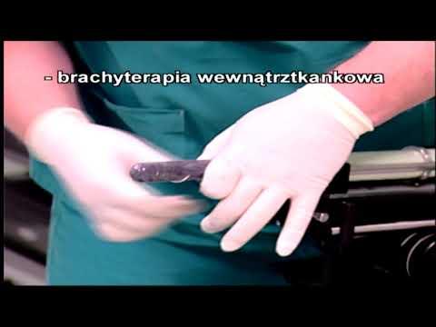Zwłóknienie raka prostaty