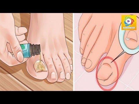 Le microorganisme végétal des ongles chez les grands-mères