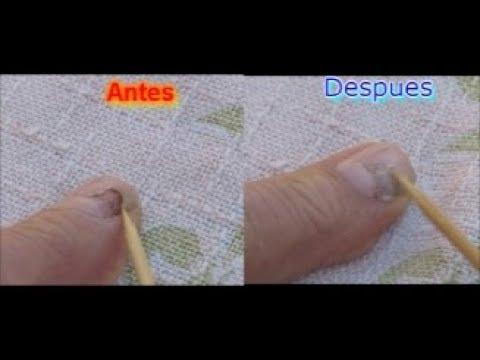 El tratamiento quirúrgico de la uña encarnada en el pie del vídeo
