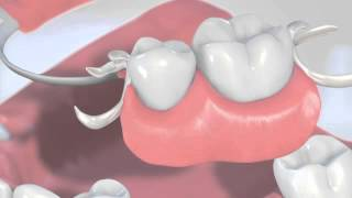 Missing many teeth : Traditional treatments