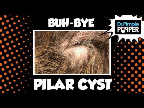 Cyst Explosions 2019