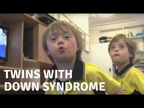 Watch video The Whittington Twins with Down Syndrome