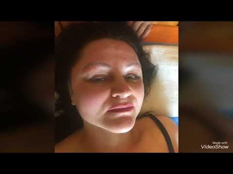 Tratamentul Kemerovo de comentarii prostatita