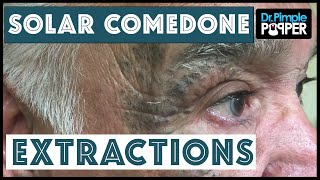 """Extensive Solar Comedone Extractions, Part 1: Nickname """"Masked Man"""""""