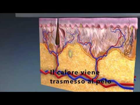 Furacilin allatto di trattamento di un fungo di unghie