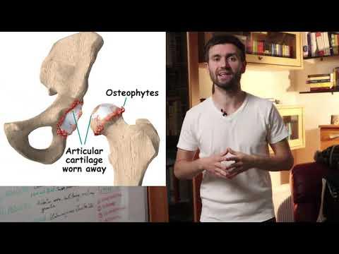Deforma artroza genunchiului 3 grade