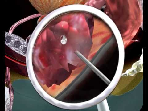 Prostaty centrum leczenia w Niemczech