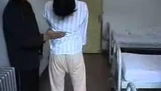 4-1 До операции (Торсионный спазм)