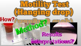 Bacteria Motility Test Microbiology