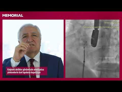 Kalpteki deliklerin ameliyatsız tedavisi nasıl yapılıyor?