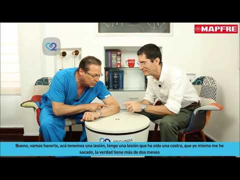 Eliminarea anesteziei locale a verucilor genitale
