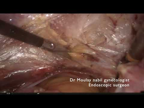 Hysterectomy for residents . Full edition