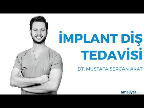 İmplant Diş Tedavisi (Dt. Mustafa Sercan Akat)